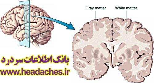 آسیب میگرن به مغز