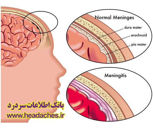مننژِیت و سردرد